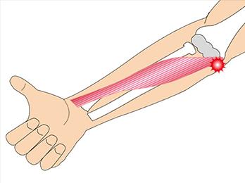 elbow-img2-1