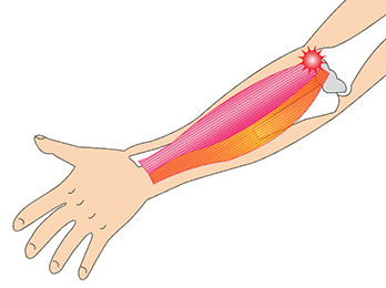 elbow-img2-2