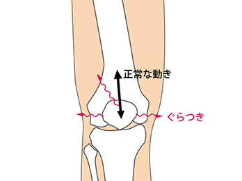 knee-img1-1