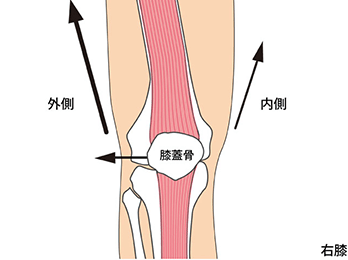 knee-img2-1