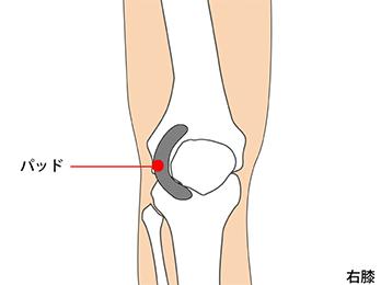knee-img2-2