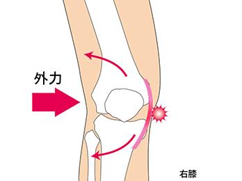 knee-img3-1