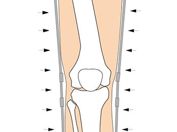 knee-img3-2