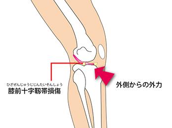 knee-img4-1