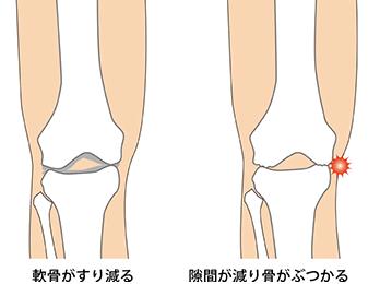 knee-img6-1