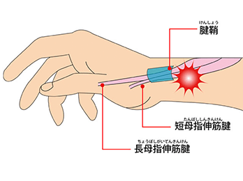 wrist-img2